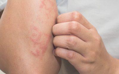 Cómo tratar el eczema atópico: ¿pueden ayudar los cosméticos de cáñamo?