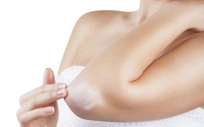 10 preguntas frecuentes sobre la psoriasis y su alivio natural